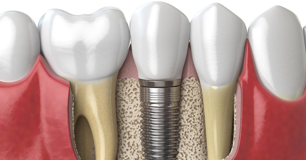 Γκανά Χειρουργός οδοντίατρος Ψυχικό εμφυτεύματα
