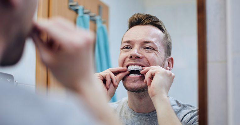 Γκανά Χειρουργός οδοντίατρος Ψυχικό λεύκανση με νάρθηκες